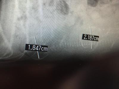 タイニーサイズトイプードルシルバーメス、妊娠犬のレントゲン画像